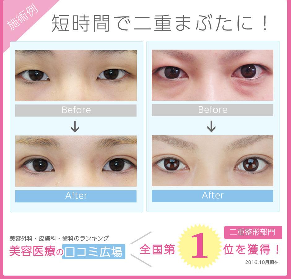 eyeforever07.jpg